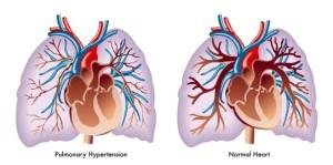 Лечение легочного сердца в Израиле