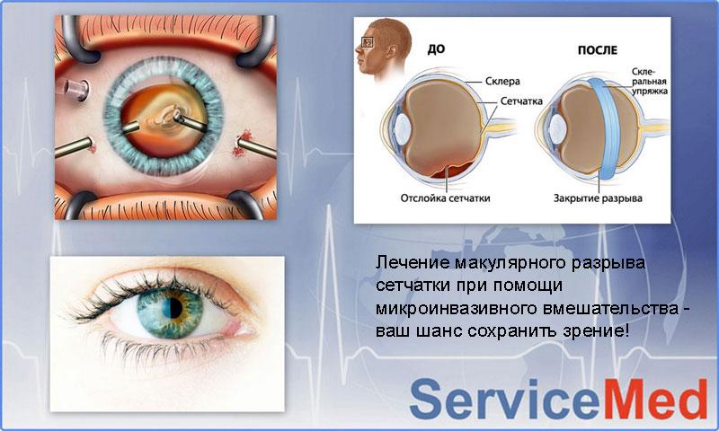 Лечение макулярного разрыва сетчатки в Израиле