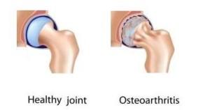Лечение артроза плечевого сустава в Израиле