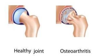 лечение деформирующего артроза плечевого сустава