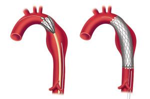 Операции на аорте в Израиле: стентирование аорты