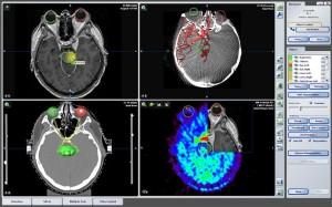 Удаление гипофизарных опухолей в Израиле: стереотаксическая радиохирургия и радиотерапия