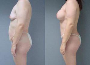 Торсопластика или подтяжка кожи после похудения в Израиле