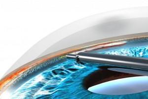 Лечение глаукомы в Израиле: трабекулэктомиия
