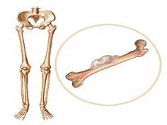 Лечение опухоли кости в Израиле