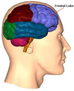 Лечение опухоли лобной доли мозга в Израиле
