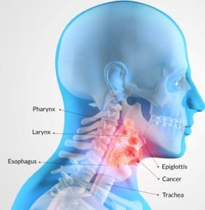 Лечение опухоли гортани в Израиле