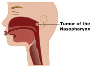 Лечение опухоли носоглотки в Израиле