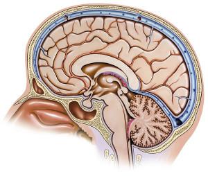 Лечение опухоли затылочной доли мозга в Израиле