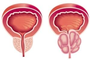 Лечение опухоли предстательной железы в Израиле