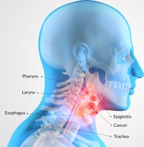 Лечение опухоли глотки в Израиле