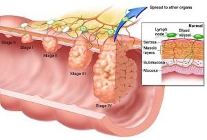 Удаление опухоли мочевого пузыря в Израиле