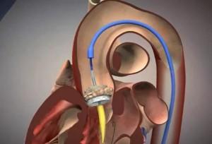 Имплантация клапана с помощью катетера в Израиле